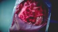 Worek transferowy na krew