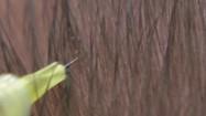 Ostrzykiwanie skóry głowy osoczem bogatopłytkowym