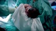 Noworodek od razu po porodzie