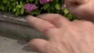 Poparzenia skórne
