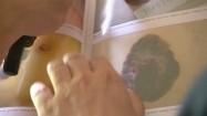 Ilustracje przedstawiające czerniaka