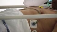 Pacjent na łóżku szpitalnym