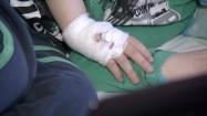 Wenflon wkłuty w dłoń